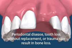 Periodontal disease, tooth loss without replacement, or trauma can result in bone loss and the need for bone grafts.