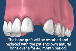 Bone grafts will be resorbed and replaced with the patient's own natural bone over a 4-6 month period.