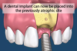A dental implant can now be placed into the previously atrophic site.