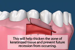 This will help thicken the zone of keratinized tissue and prevent future recession from occurring.