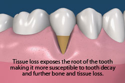 Tissue loss exposes the root of the tooth making it more susceptible to tooth decay and further bone and tissue loss.