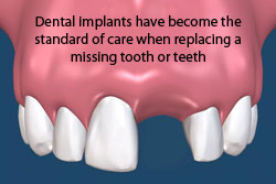 Dental implants have become the standard of care when replacing a missing tooth or teeth.