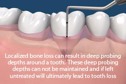 Localized bone loss can result in deep probing depths around a tooth. These deep probing depths can not be maintained and if left untreated will untimately lead to tooth loss.