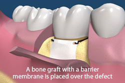 A bone graft with a barrier membrane is palced over the defect.