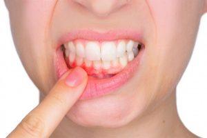Gum Recession Stamford CT