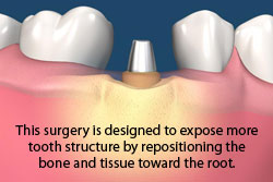 crown lengthening procedure is designed to expose more tooth structure by repositioning the bone and tissure toward the root.