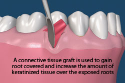 A connective tissue graft is used to gain root covered and increase the amount of keratinized tissue over the exposed roots.