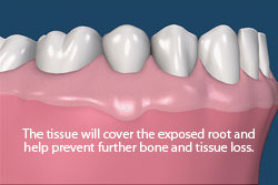 The tissue will cover the exposed root and help prevent further bone and tissue loss.
