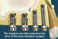 The implants are often placed at the time of the sinus lift surgery.
