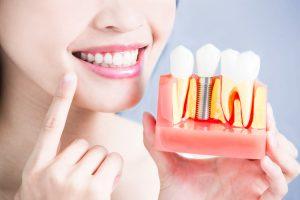 Dental Implants Fairfield County, CT