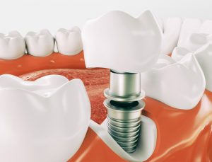 Tooth Implants Fairfield County, CT